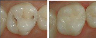 laga hål i tand pris
