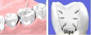 hål mellan tänderna