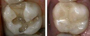 amalgam i tänder