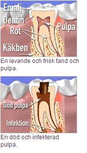 död tand symtom