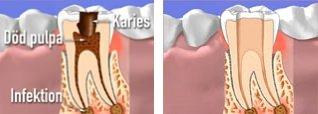 infektion under rotfylld tand behandling