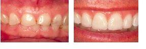 ersättning skada tandvård